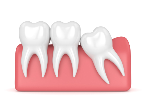 Wisdom Teeth Removal Factors & Recovery Tips