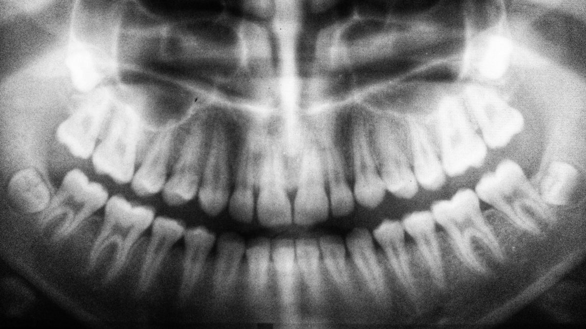 Wisdom Teeth Removal - 8 Popular Questions Answered