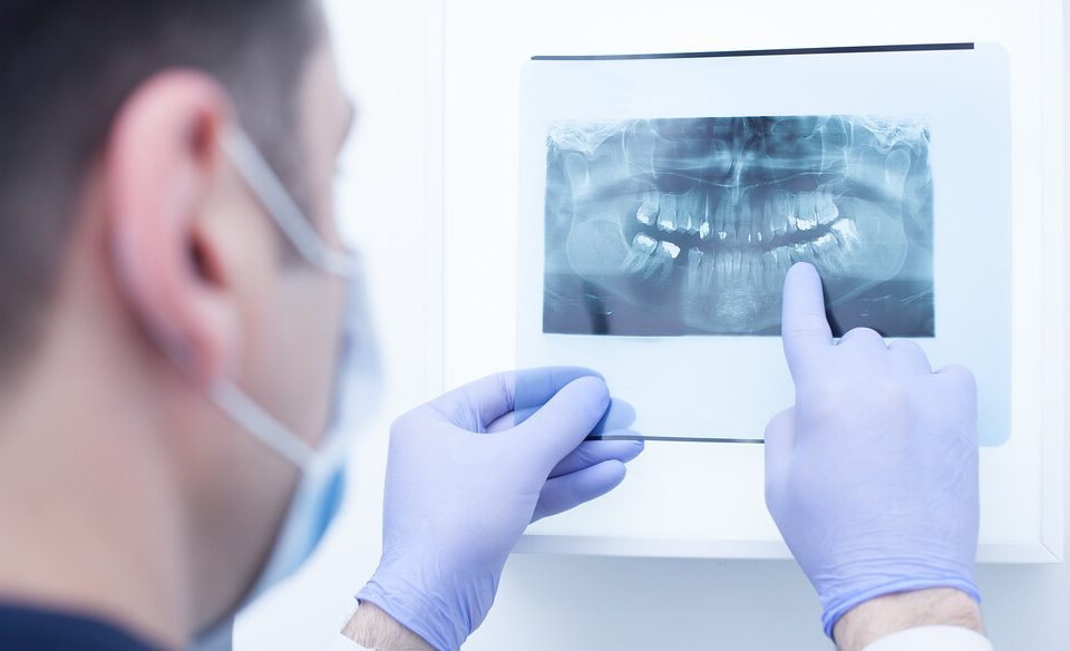 How long would it take to recover from Wisdom Teeth Removal?