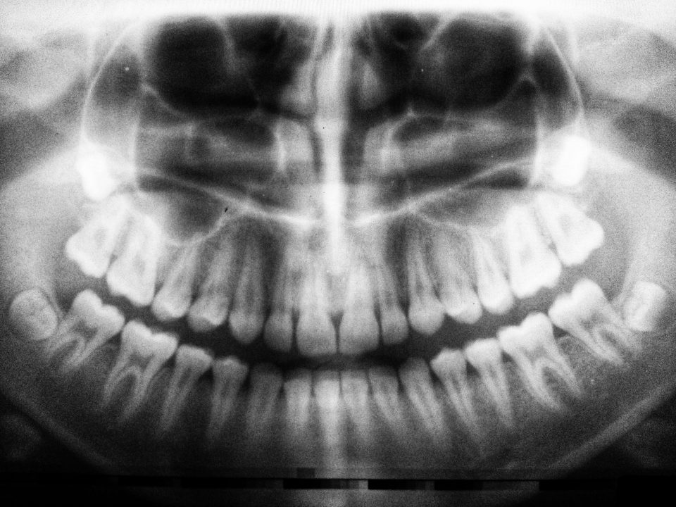 What does Wisdom Teeth Removal procedure involve?
