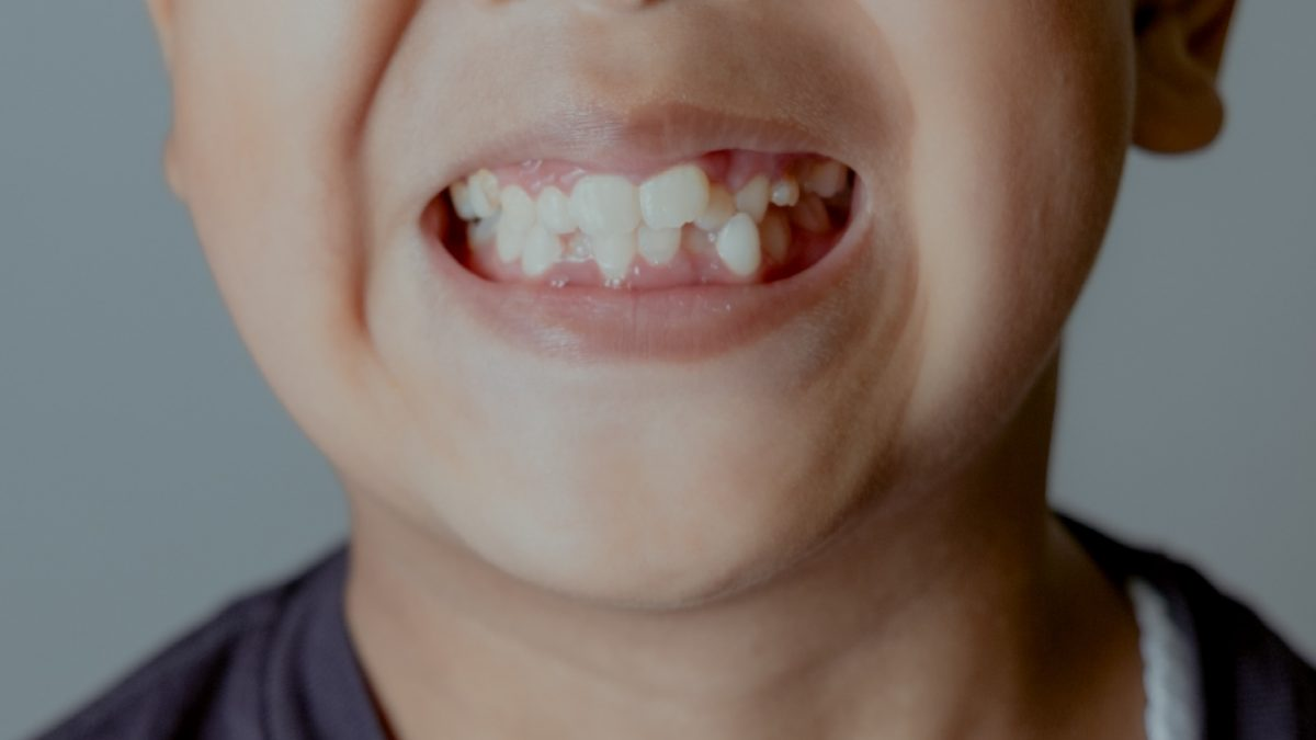 What Happens If You Don't Remove Impacted Wisdom Teeth?